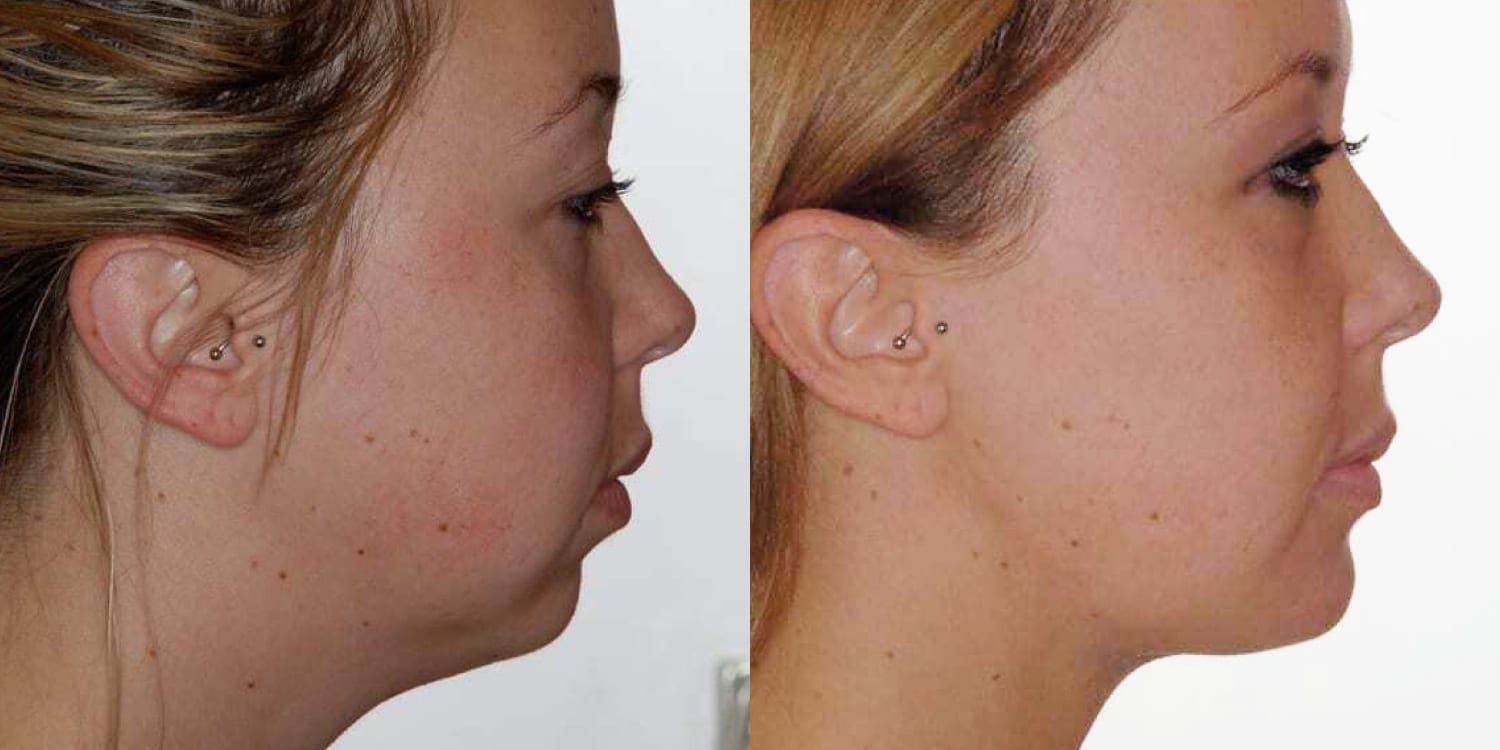 chin lift before and after the hughes center
