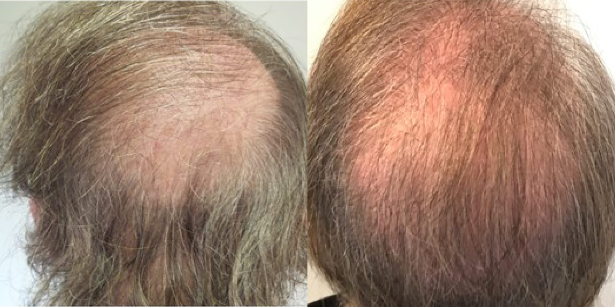 hair restoration before and after hughes center
