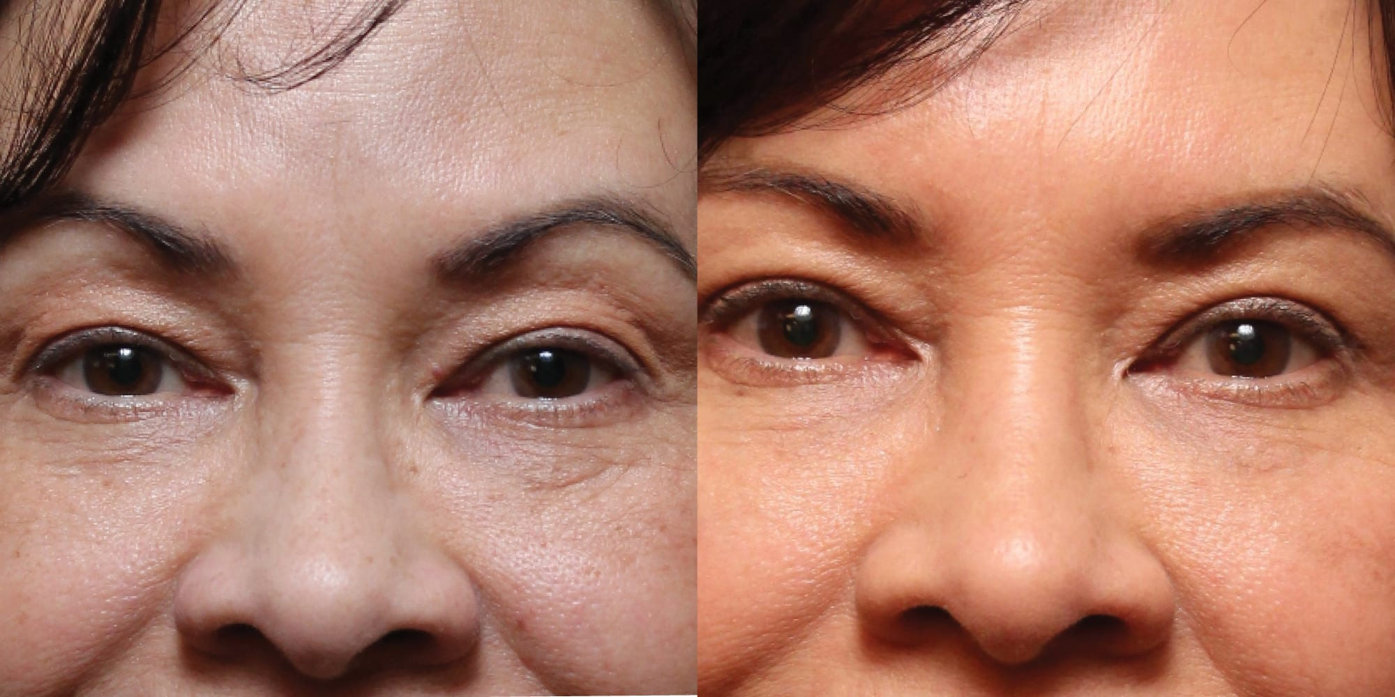 rhinoplasty before and after hughes center